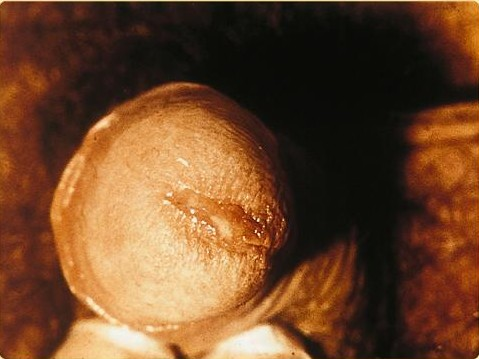 Chlamydia Male